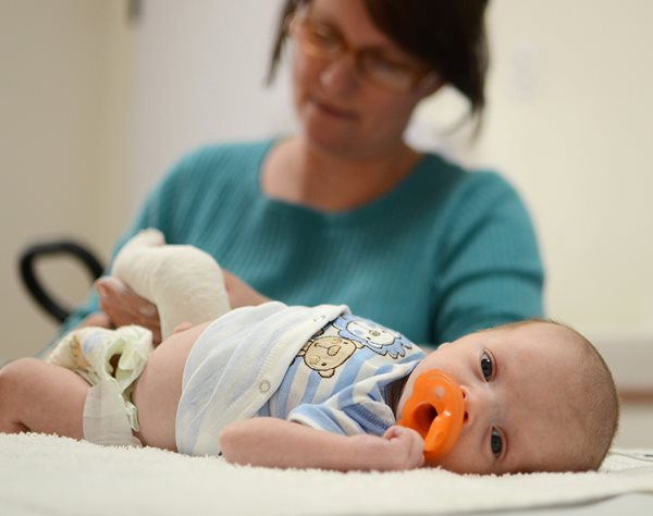 Infant patient receiving treatment for clubfoot at Center for Excellence in Foot at Texas Scottish Rite Hospital for Children