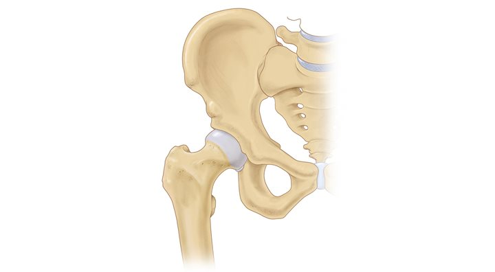Illustration of hip joint with athletic injury labral tear