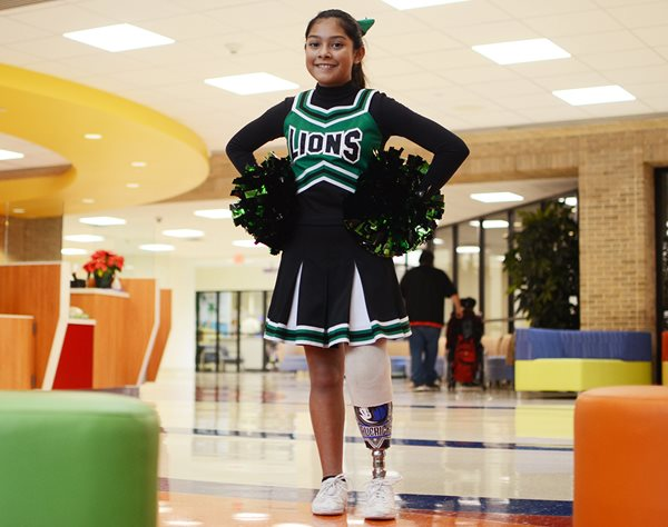 Young girl with prosthetic leg in cheerleading uniform at Texas Scottish Rite Hospital for Children